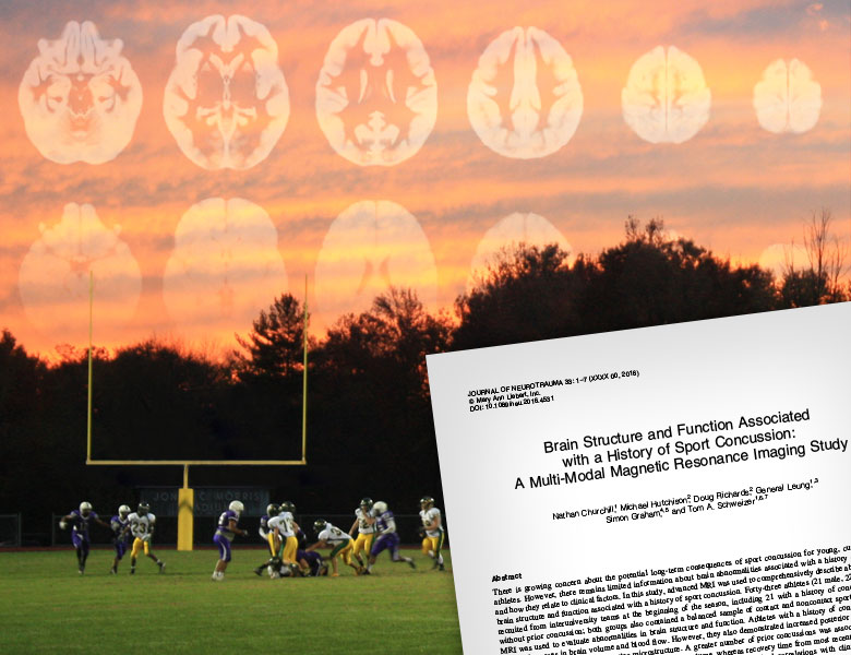 Image of a football game with concussion brain scans superimposed